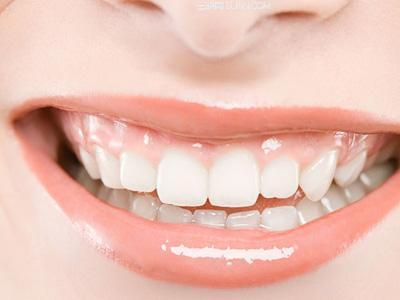 植物牙齿美白加盟
